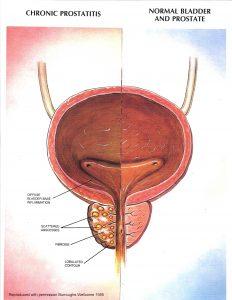 does chronic prostatitis go away