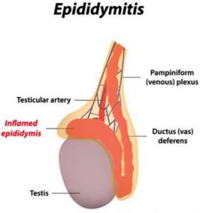 eb610c8aa1b7 Cure for epididymitis
